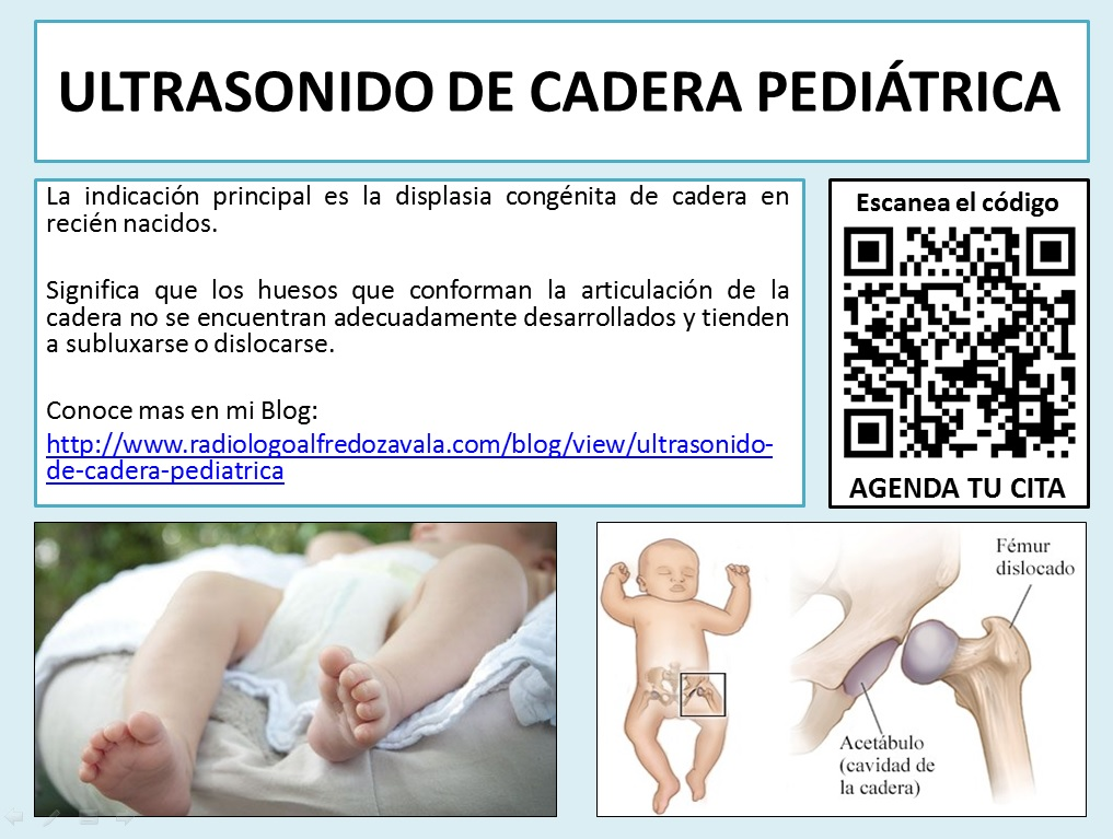 Ultrasonido de Cadera Pediatrica
