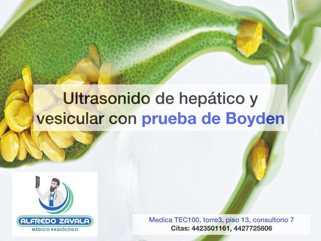 Ultrasonido de hígado y vías biliares con prueba de Boyden