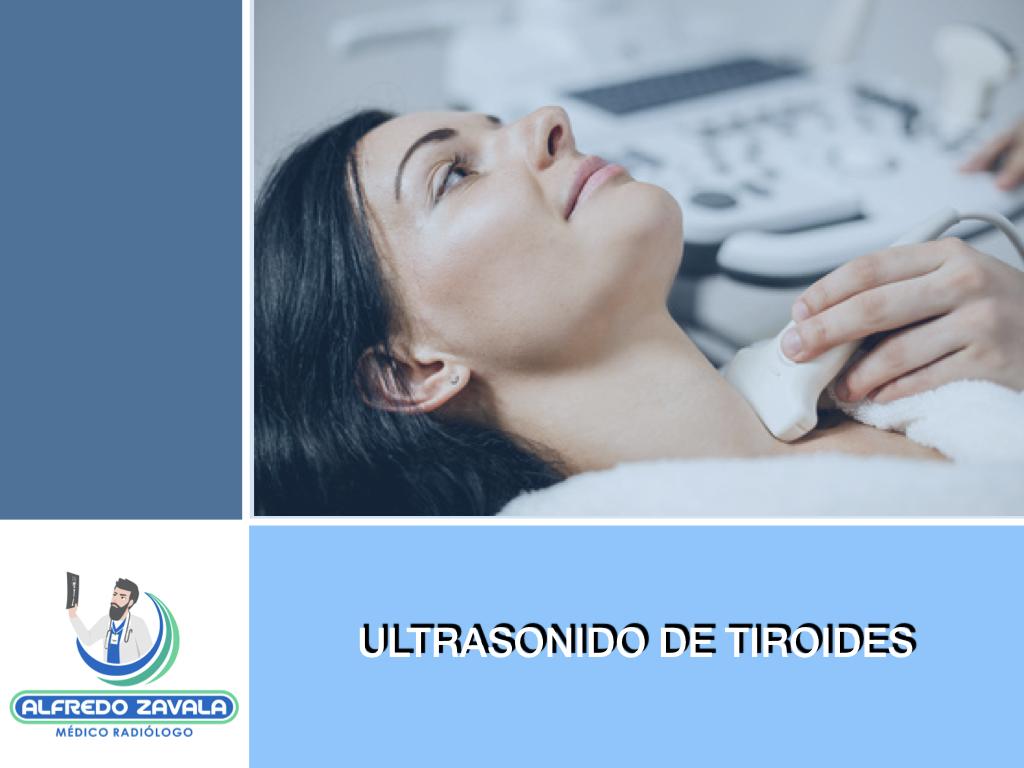 Ultrasonido de Tiroides en Querétaro
