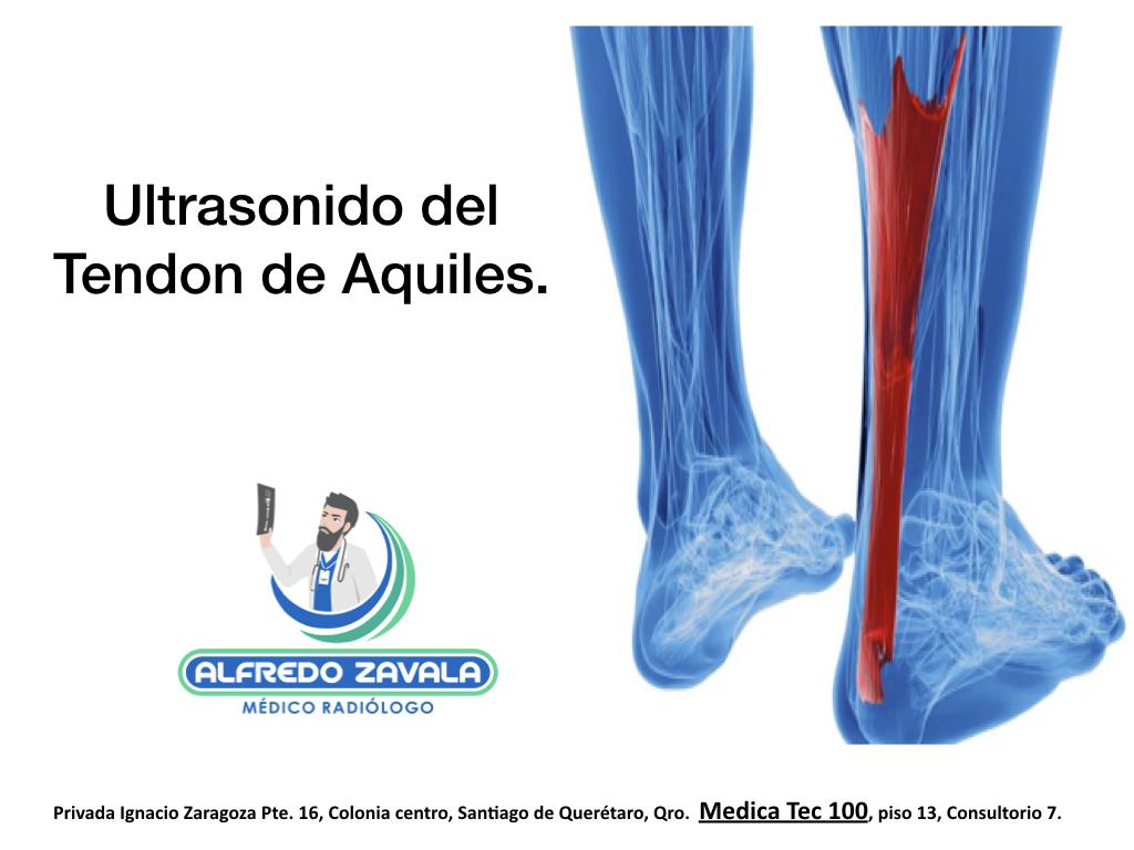 Ultrasonido del Tendón de Aquiles en Querétaro.