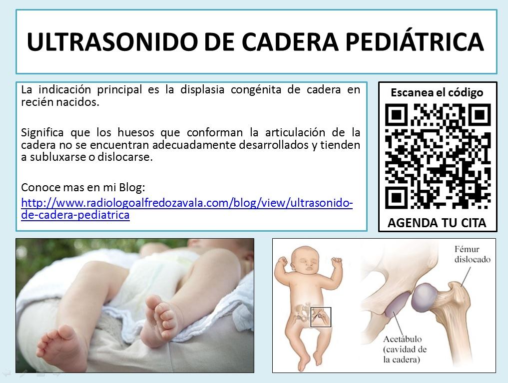 Ultrasonido de Cadera Pediatrica
